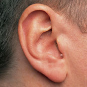 hearing aid completely in canal (CIC)